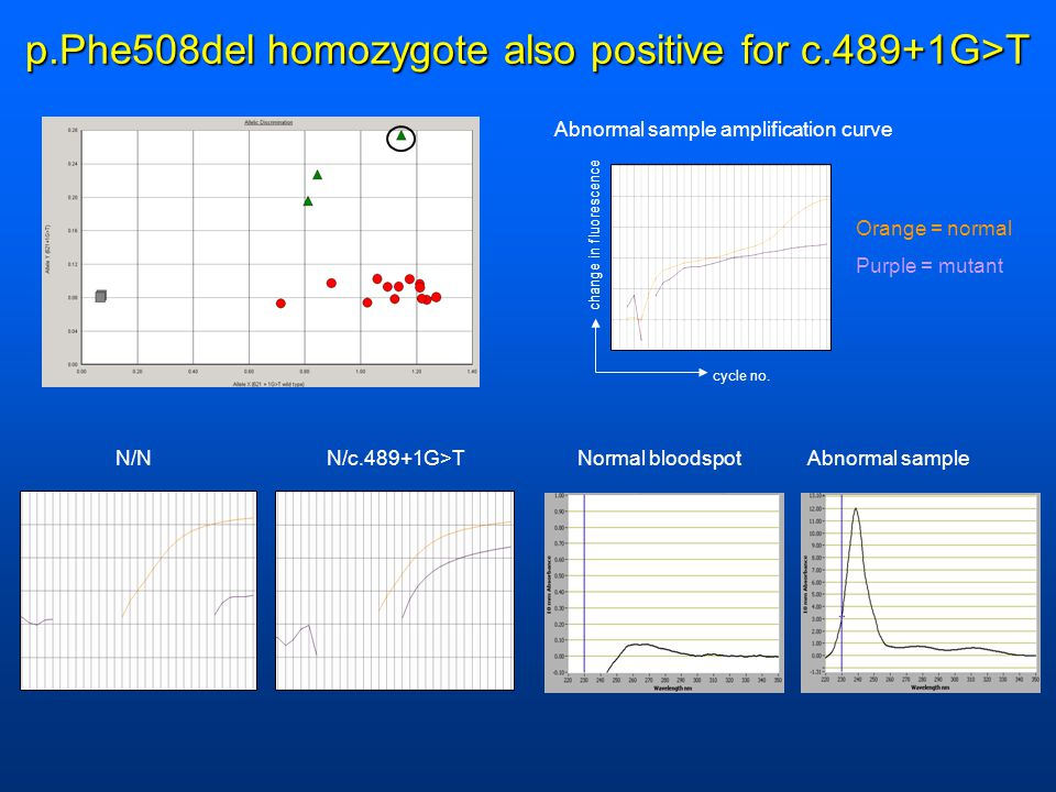 p.Phe508del homozygote also positive for c.489+1G>T