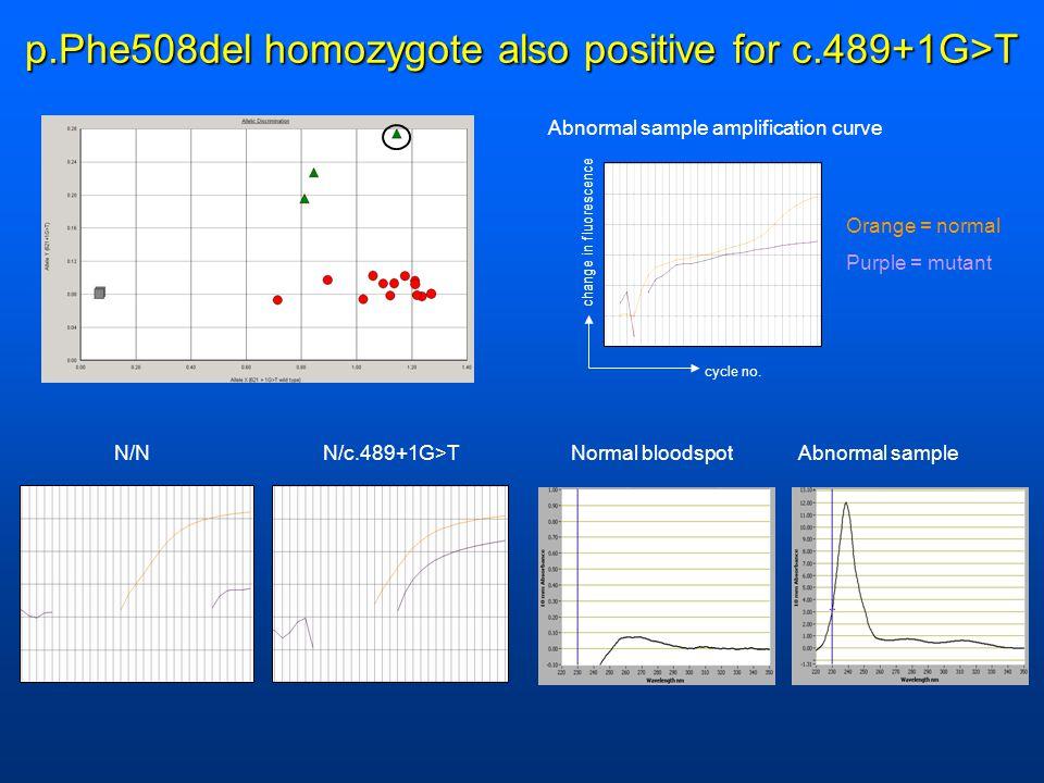 p.Phe508del homozygote also positive for c.489+1G>T