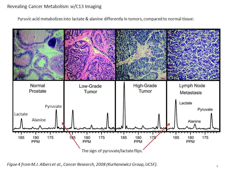 Revealing Cancer Metabolism w/C13 Imaging