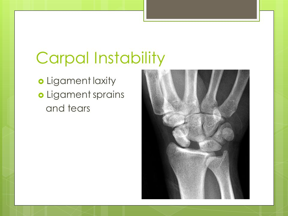 Carpal Instability Ligament laxity Ligament sprains and tears