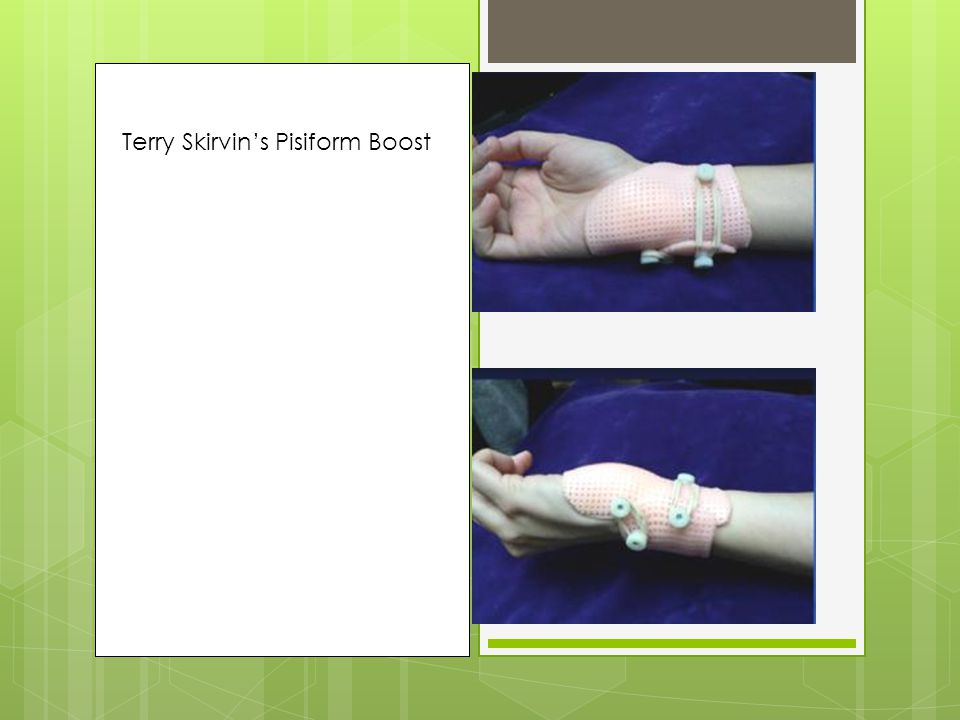 Pisiform Boost Terry Skirvin: Philadelphia Hand Center