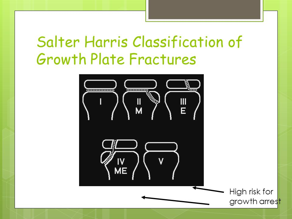 Salter Harris Classification of Growth Plate Fractures