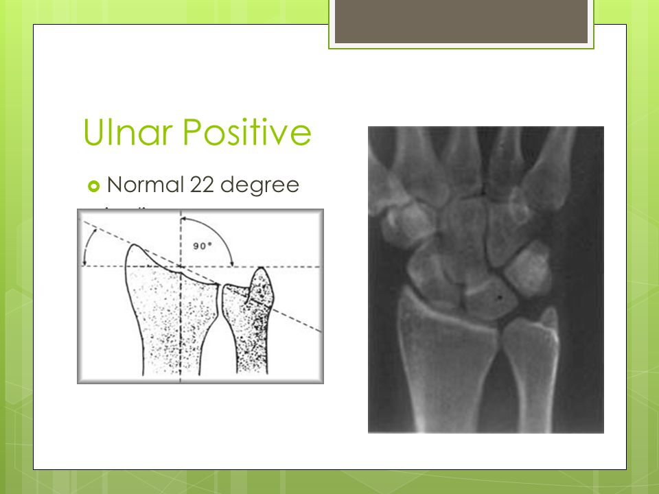 Ulnar Positive Normal 22 degree Ulnar Positive incline.