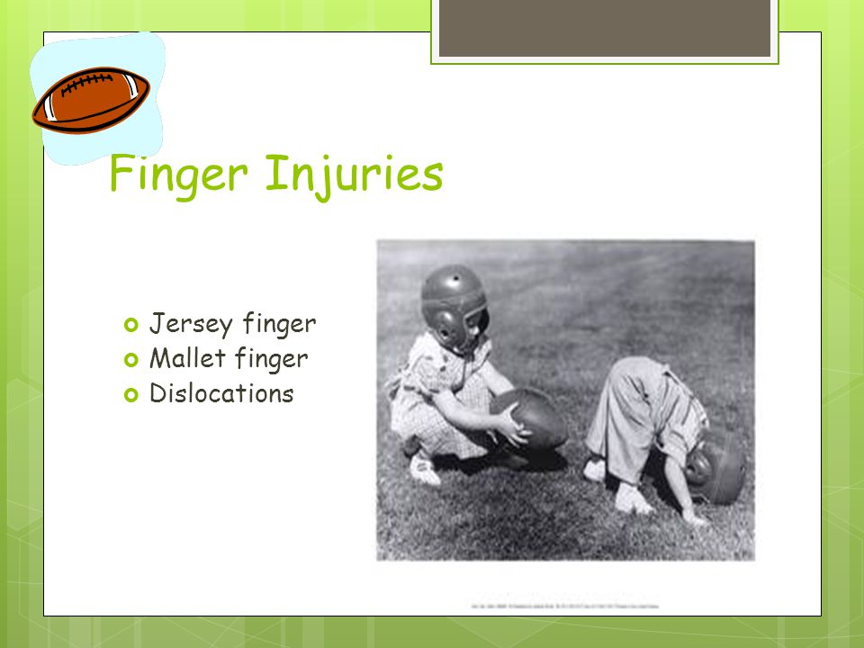 Finger Injuries Jersey finger Mallet finger Dislocations