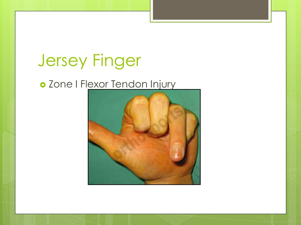 Jersey Finger Zone I Flexor Tendon Injury
