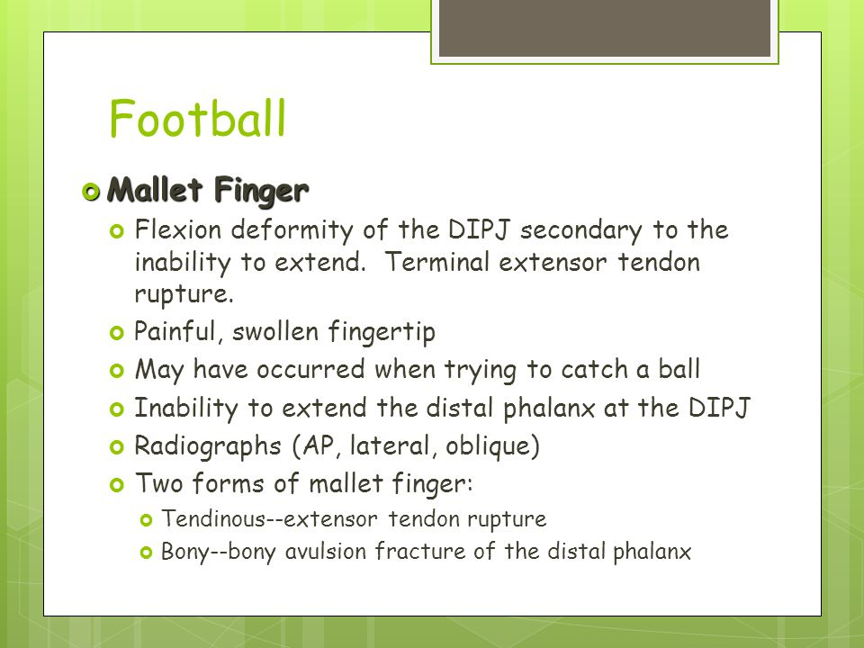 Football Mallet Finger