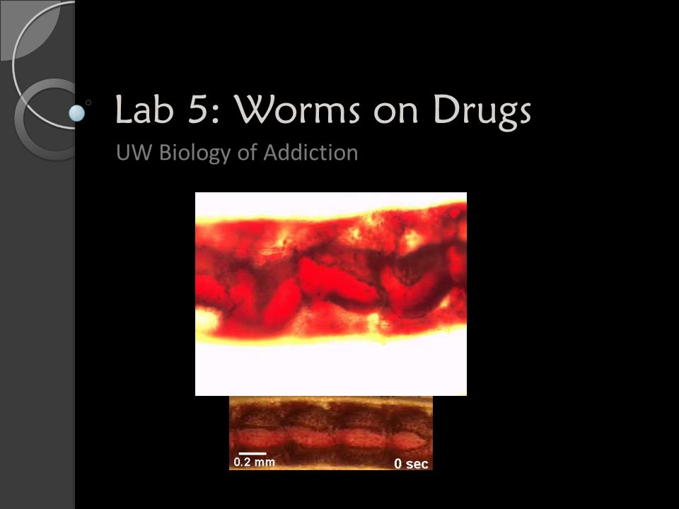 UW Biology of Addiction