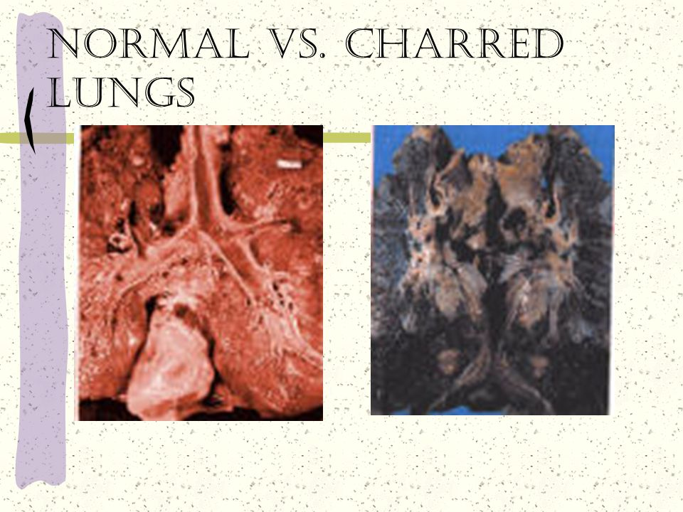 Normal vs. charred lungs