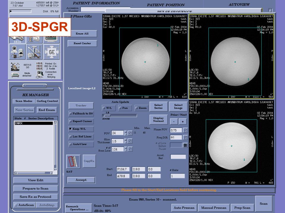 3D-SPGR q3dgrass2