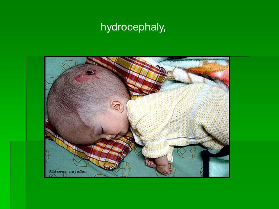 hydrocephaly,
