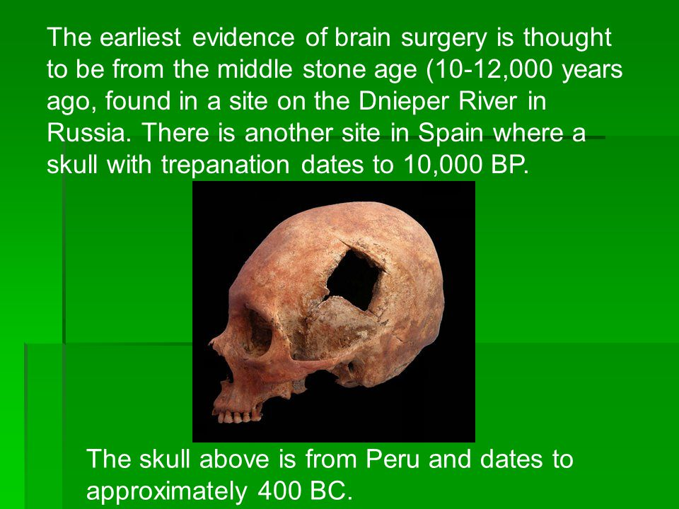 The earliest evidence of brain surgery is thought to be from the middle stone age (10-12,000 years ago, found in a site on the Dnieper River in Russia. There is another site in Spain where a skull with trepanation dates to 10,000 BP.
