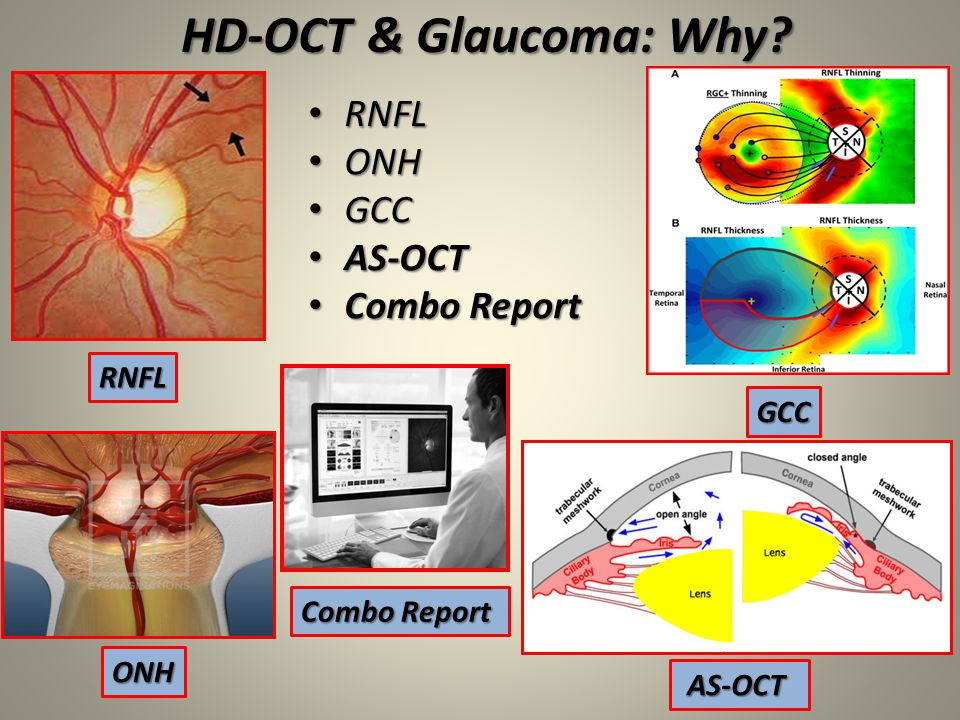 HD-OCT & Glaucoma: Why RNFL ONH GCC AS-OCT Combo Report RNFL GCC