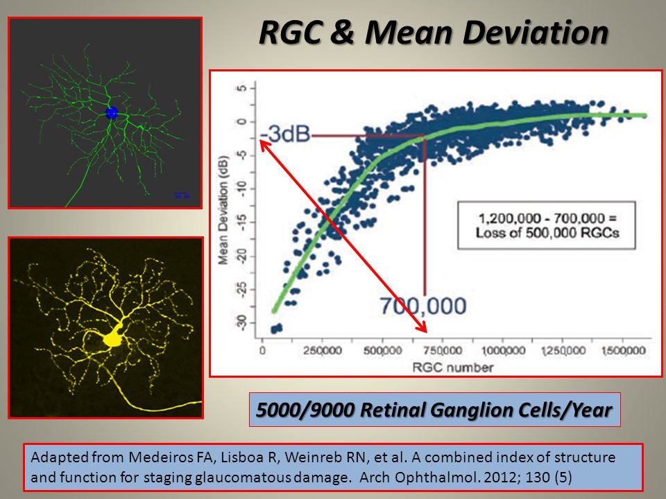 RGC & Mean Deviation 5000/9000 Retinal Ganglion Cells/Year