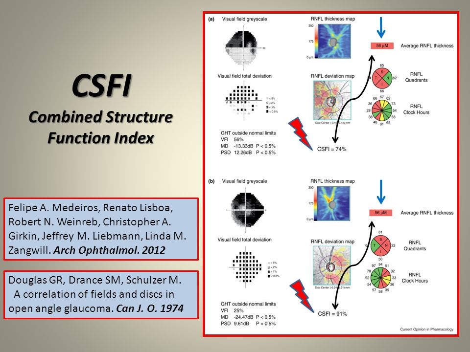 CSFI Combined Structure Function Index