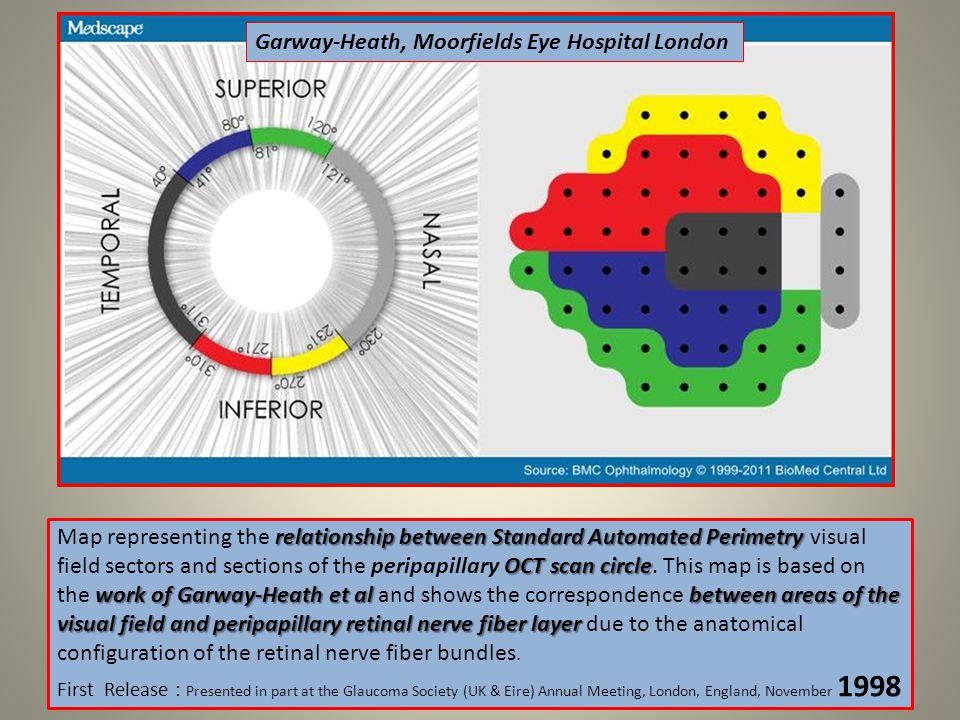 Garway-Heath, Moorfields Eye Hospital London