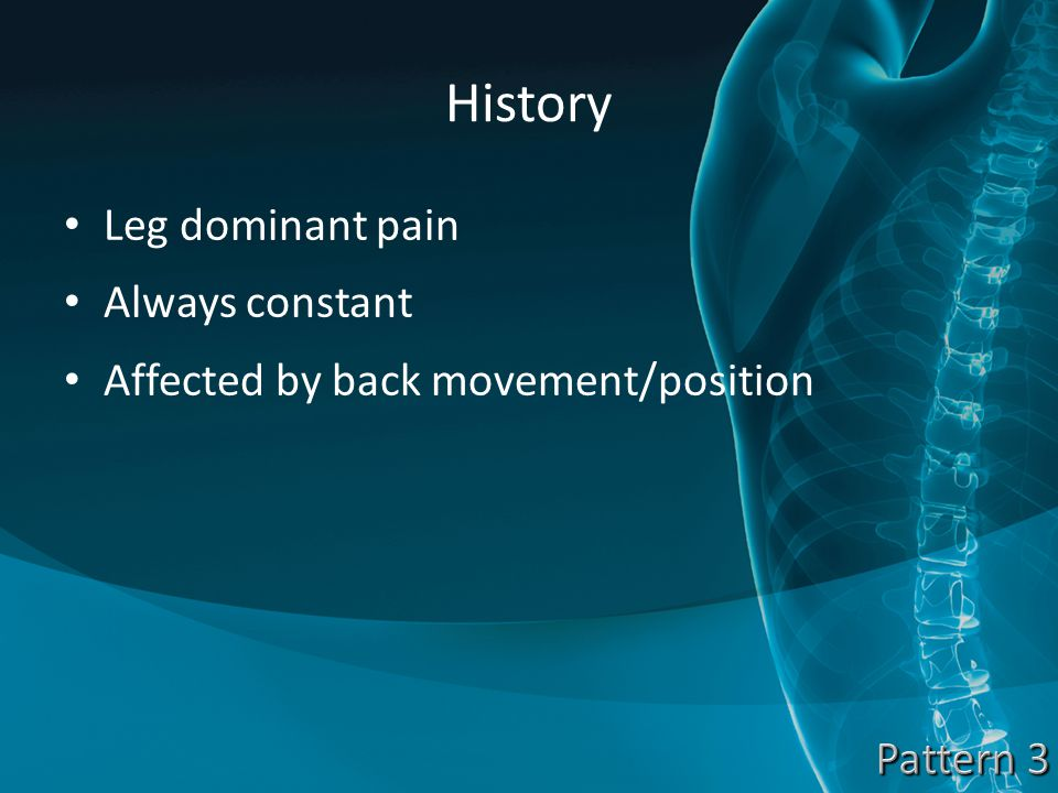 History Leg dominant pain Always constant