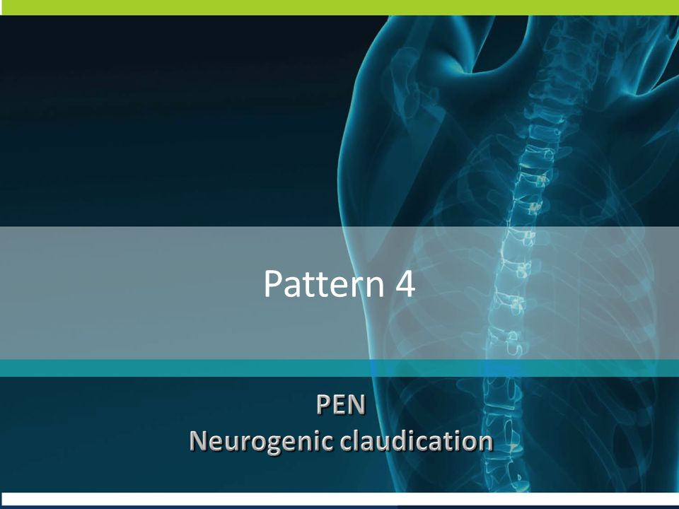 Neurogenic claudication