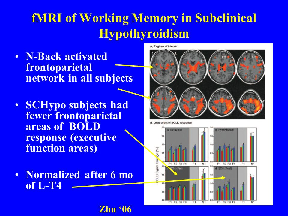 fMRI of Working Memory in Subclinical Hypothyroidism