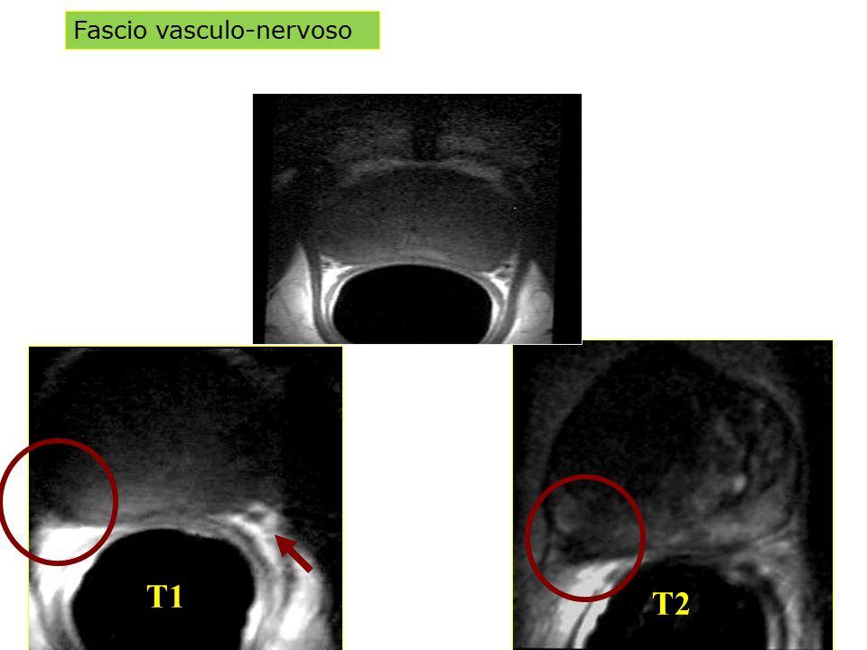 Fascio vasculo-nervoso