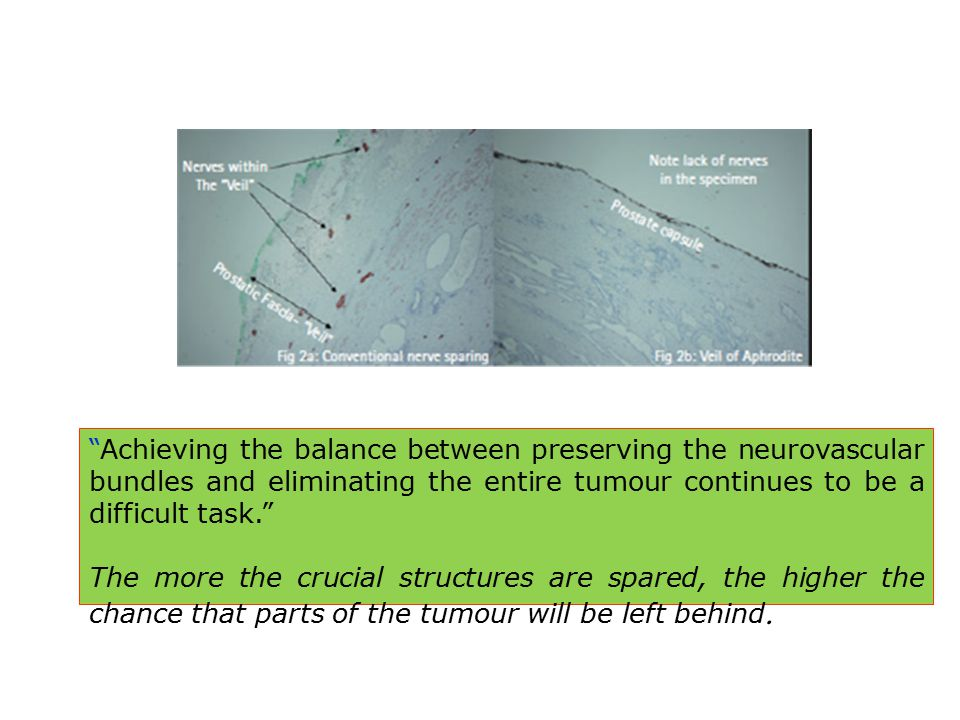 Achieving the balance between preserving the neurovascular bundles and eliminating the entire tumour continues to be a difficult task.