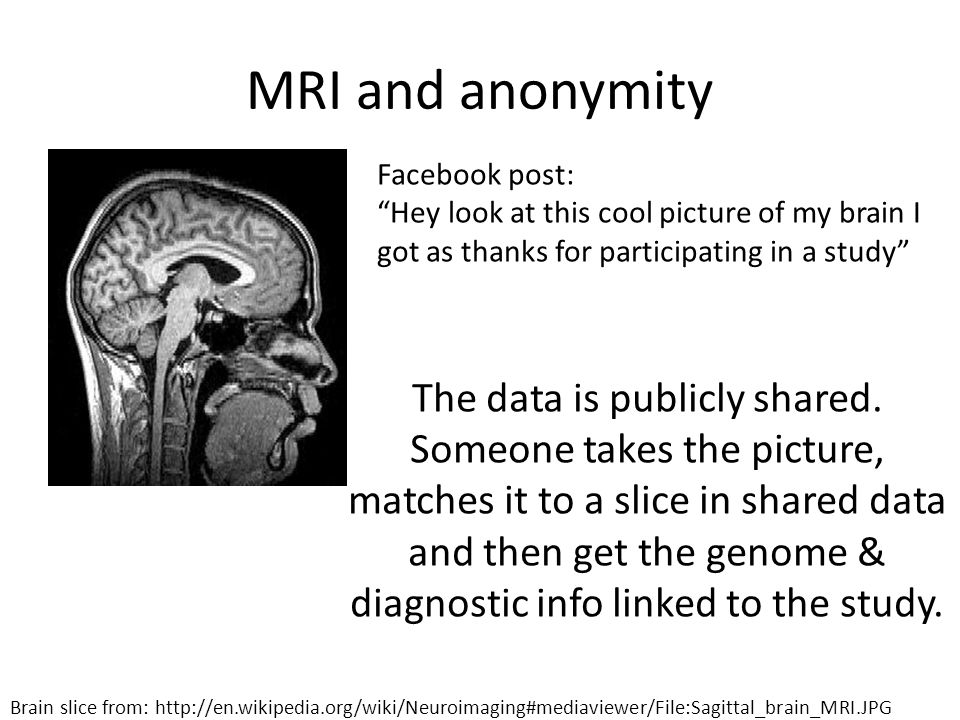 MRI and anonymity Facebook post: Hey look at this cool picture of my brain I got as thanks for participating in a study