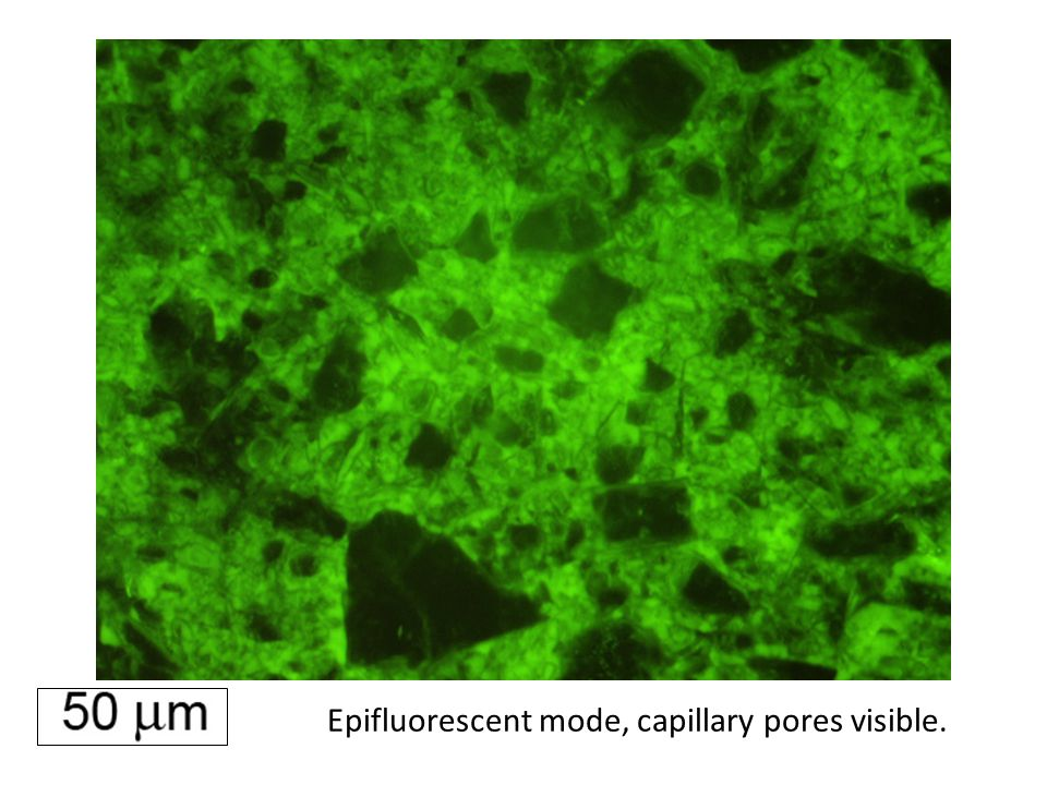 Epifluorescent mode, capillary pores visible.