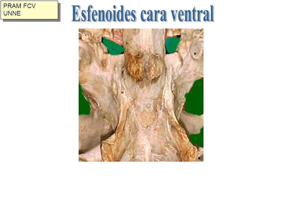 Esfenoides cara ventral