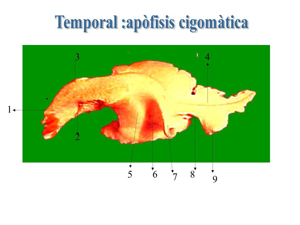 Temporal :apòfisis cigomàtica