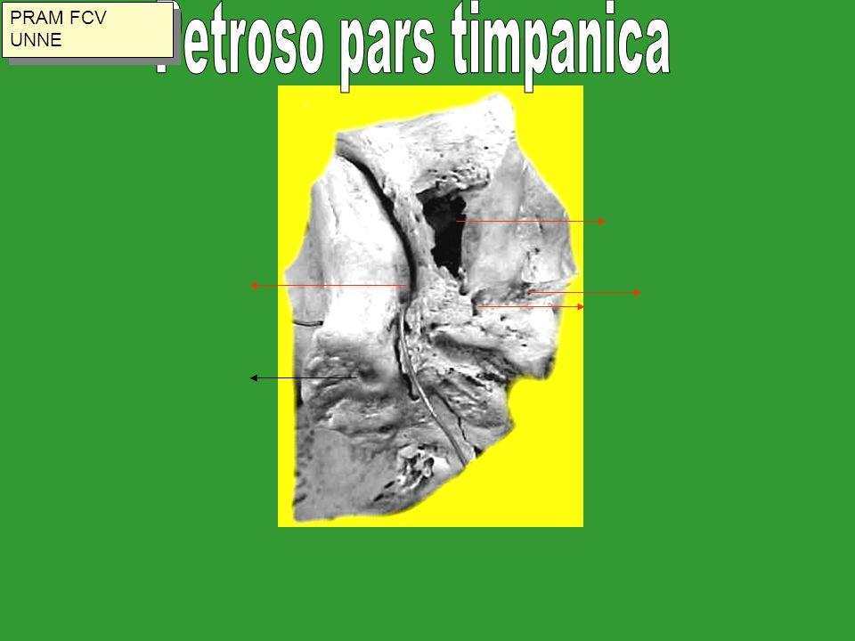 Petroso pars timpanica
