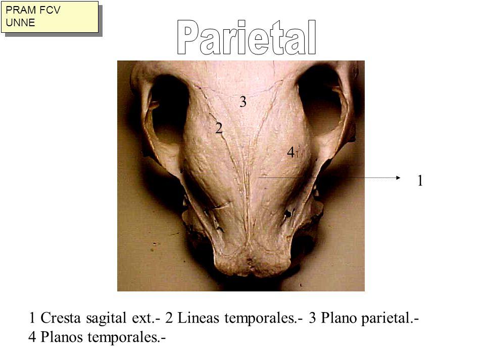 PRAM FCV UNNE Parietal. 3. 2. 4. 1. 1 Cresta sagital ext.- 2 Lineas temporales.- 3 Plano parietal.-