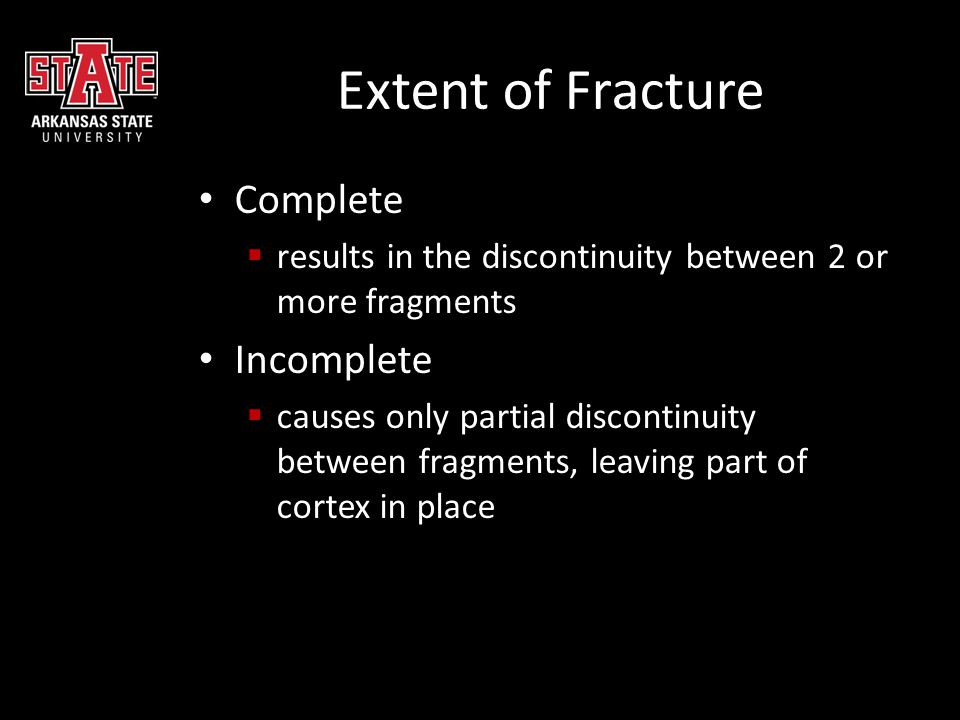 Extent of Fracture Complete Incomplete