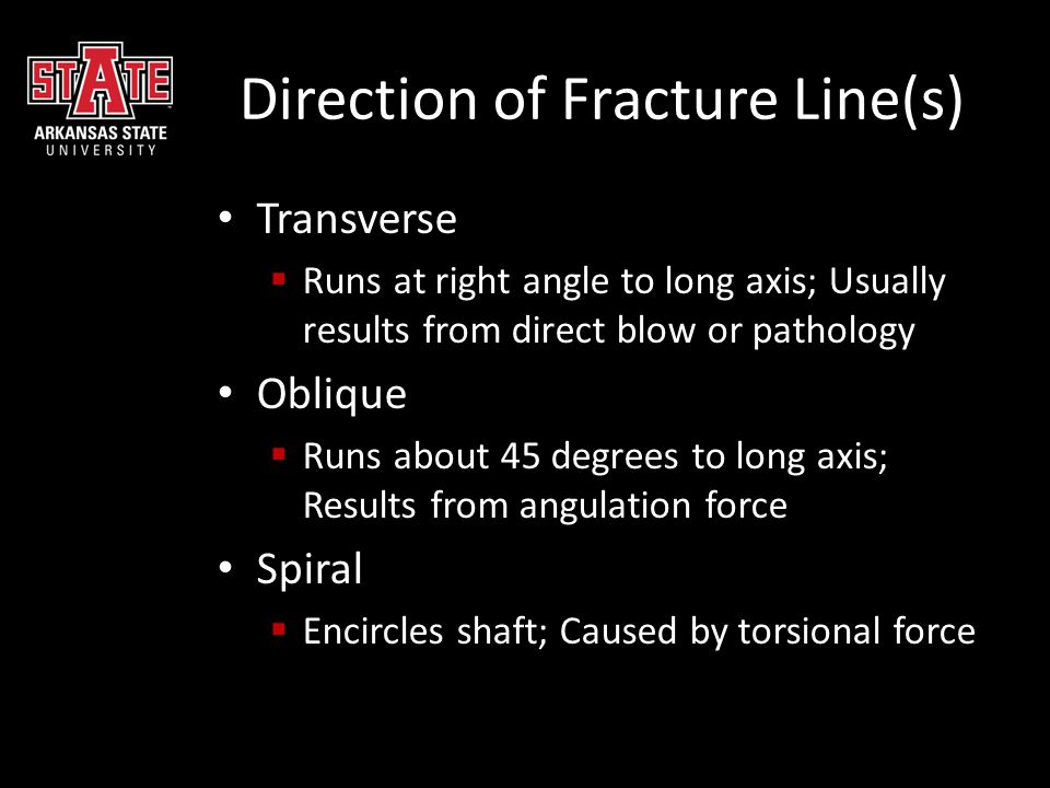 Direction of Fracture Line(s)