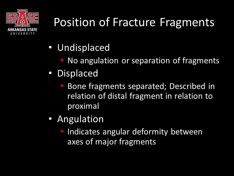 Position of Fracture Fragments