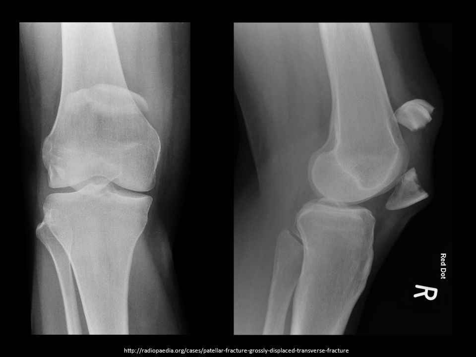 http://radiopaedia.org/cases/patellar-fracture-grossly-displaced-transverse-fracture
