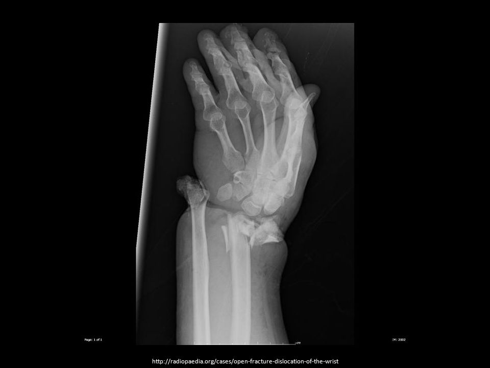 http://radiopaedia.org/cases/open-fracture-dislocation-of-the-wrist