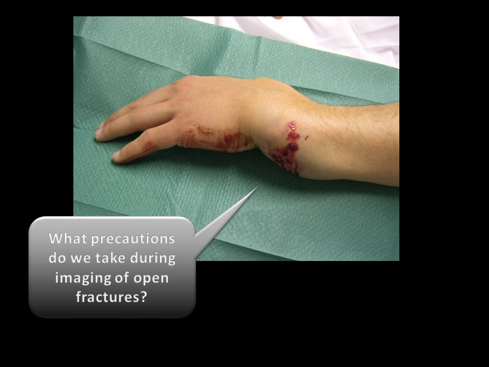 What precautions do we take during imaging of open fractures