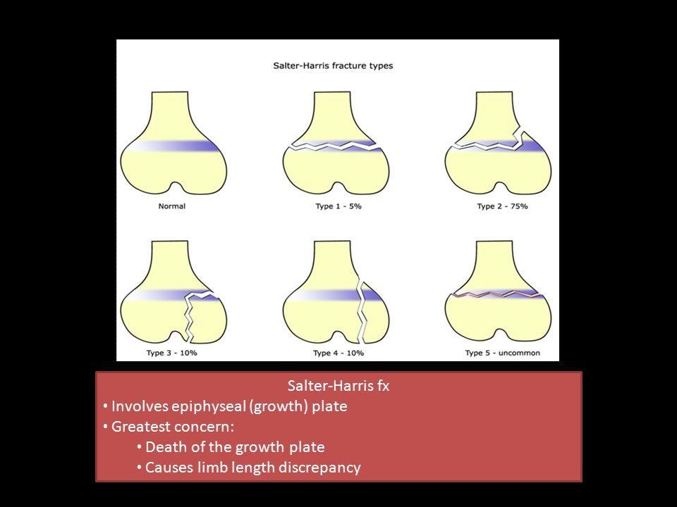Salter-Harris fx Involves epiphyseal (growth) plate. Greatest concern: Death of the growth plate.