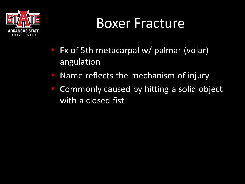 Boxer Fracture Fx of 5th metacarpal w/ palmar (volar) angulation