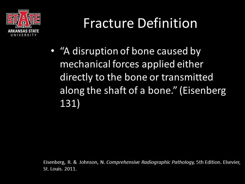 Fracture Definition