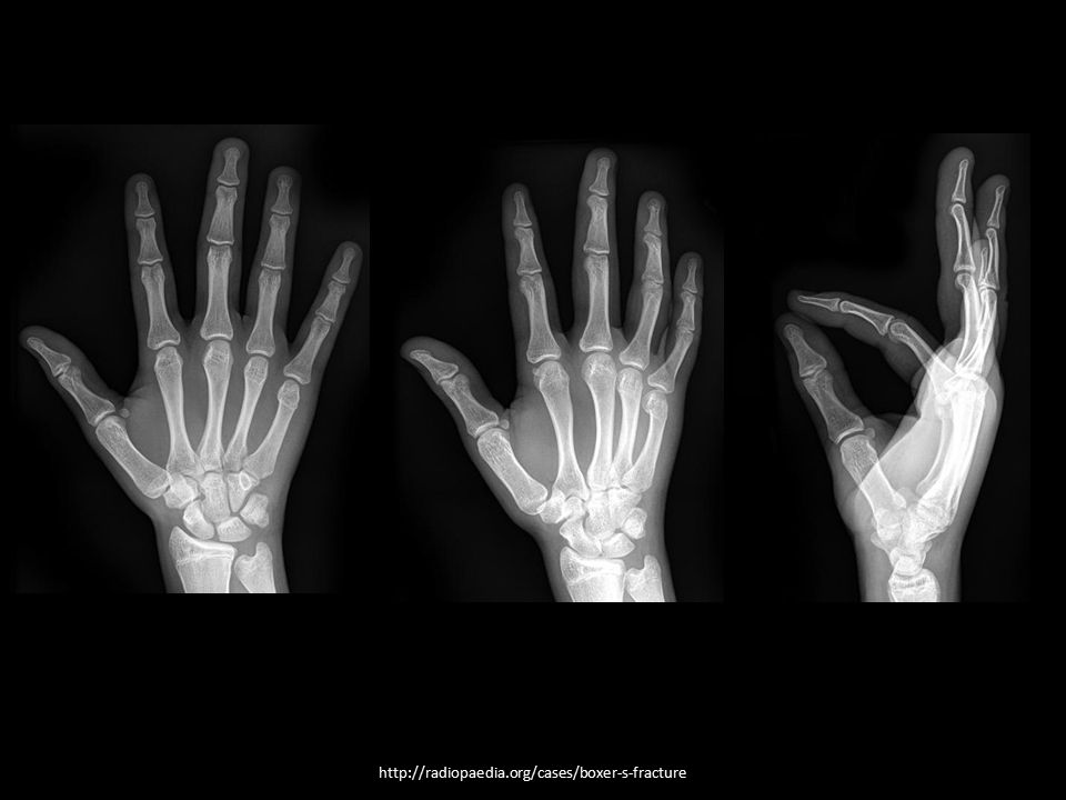 http://radiopaedia.org/cases/boxer-s-fracture