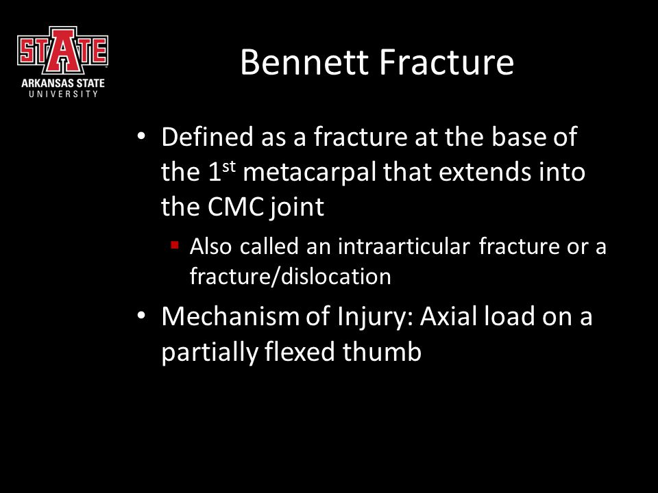 Bennett Fracture Defined as a fracture at the base of the 1st metacarpal that extends into the CMC joint.