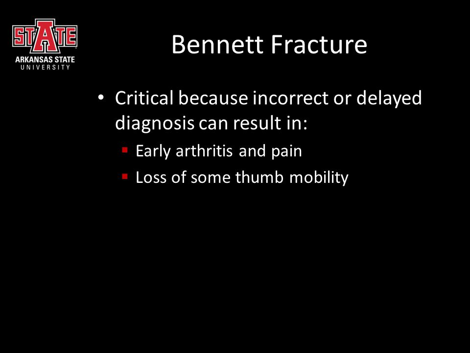 Bennett Fracture Critical because incorrect or delayed diagnosis can result in: Early arthritis and pain.