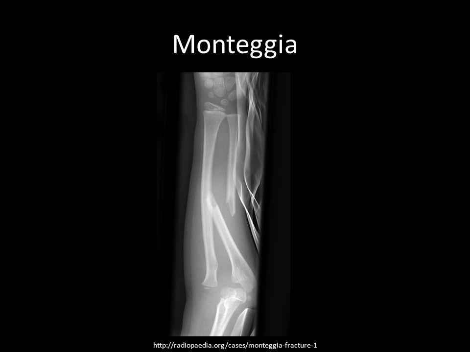 Monteggia http://radiopaedia.org/cases/monteggia-fracture-1