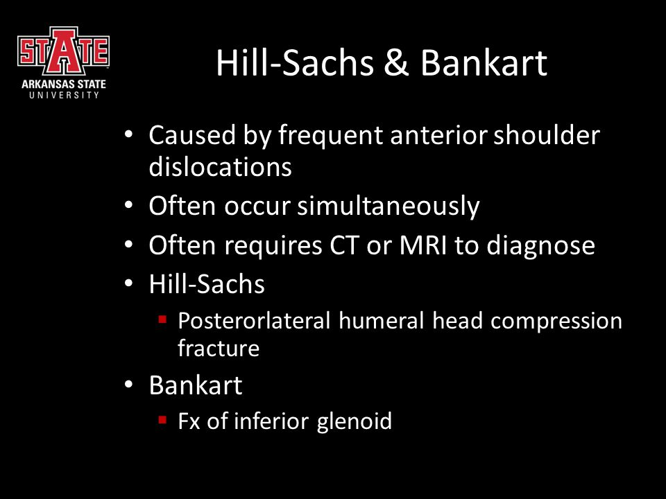 Hill-Sachs & Bankart Caused by frequent anterior shoulder dislocations