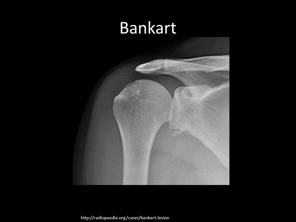 Bankart http://radiopaedia.org/cases/bankart-lesion