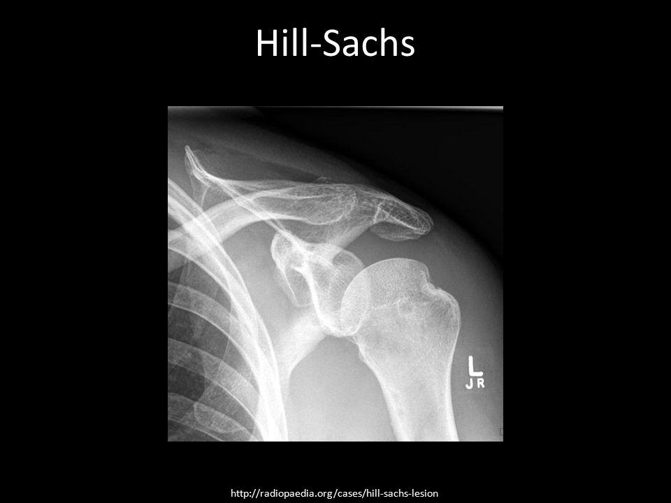 Hill-Sachs Hill-Sachs http://radiopaedia.org/cases/hill-sachs-lesion