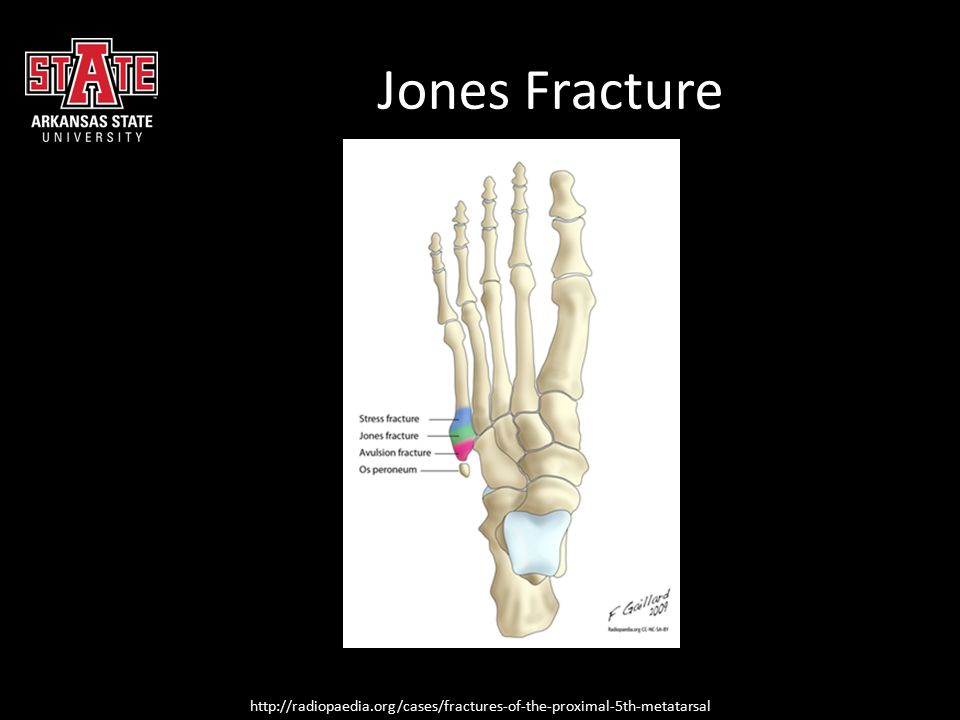 Jones Fracture http://radiopaedia.org/cases/fractures-of-the-proximal-5th-metatarsal