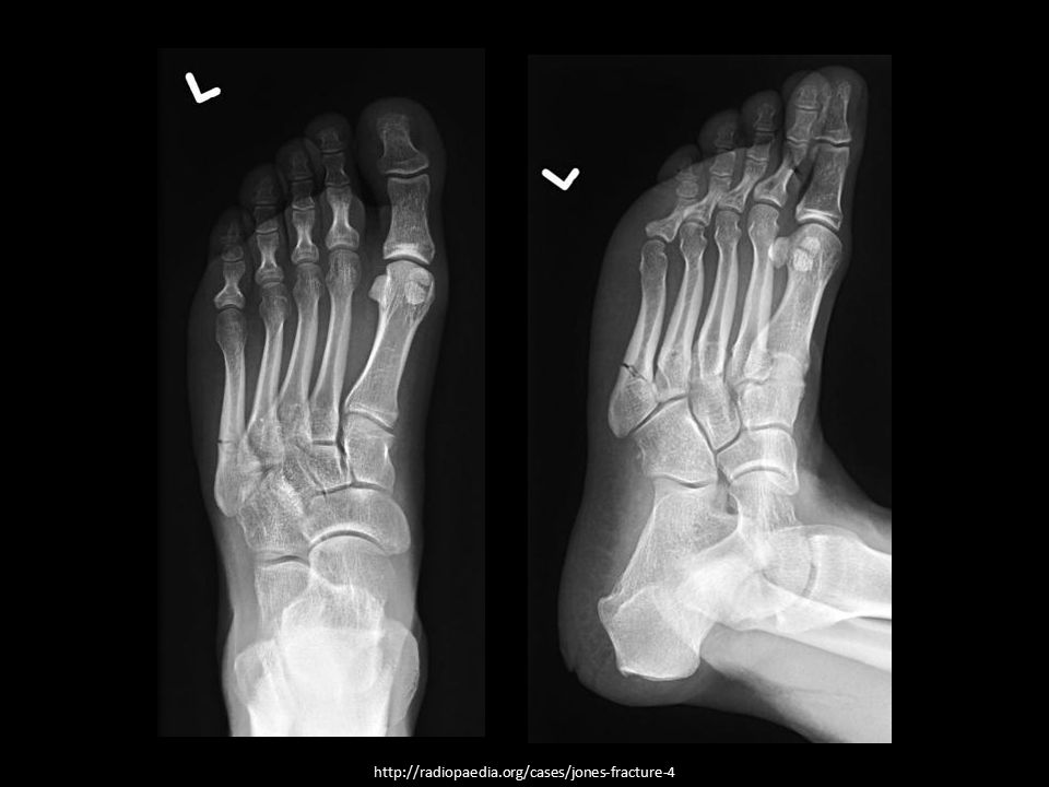 http://radiopaedia.org/cases/jones-fracture-4
