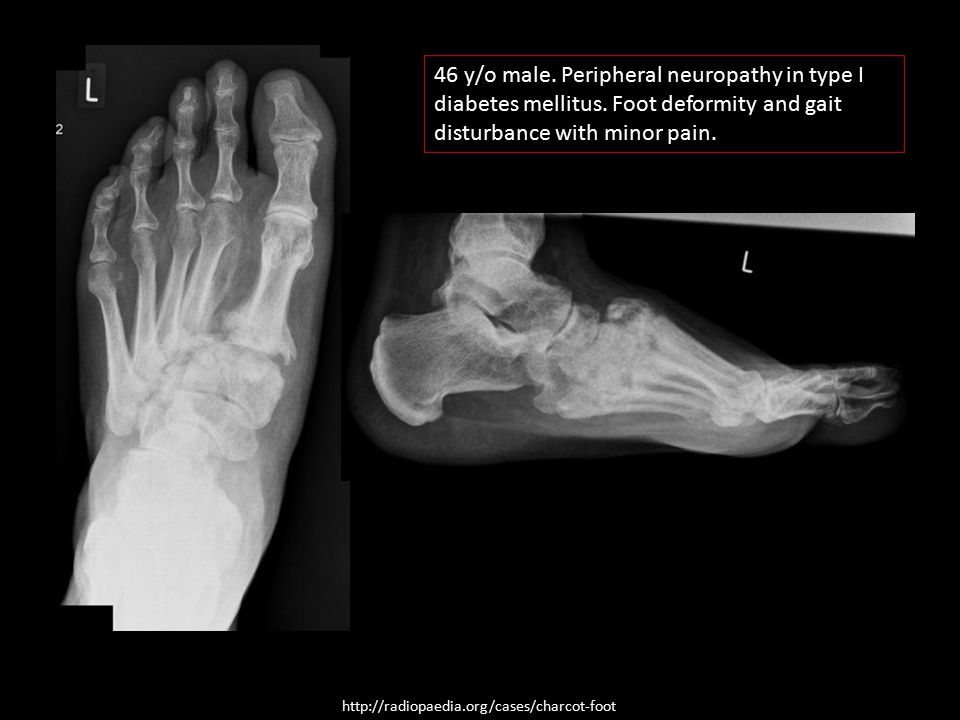 46 y/o male. Peripheral neuropathy in type I diabetes mellitus
