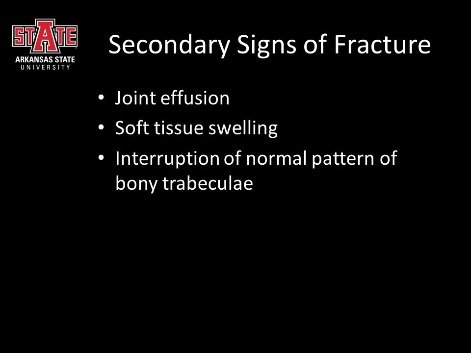 Secondary Signs of Fracture